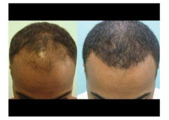 REGROW YOUR HAIR ON BALD HEAD WITH OUR EFFECTIVE HERBAL CREAM+27685371867.